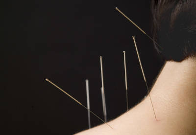 Treatment Of Neck Pain With Acupuncture
