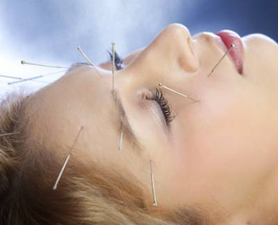 Acupuncture For Alzheimer's Disease